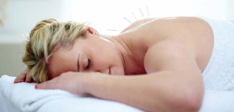 Dry Needling and Acupuncture: Here's How They Are Different
