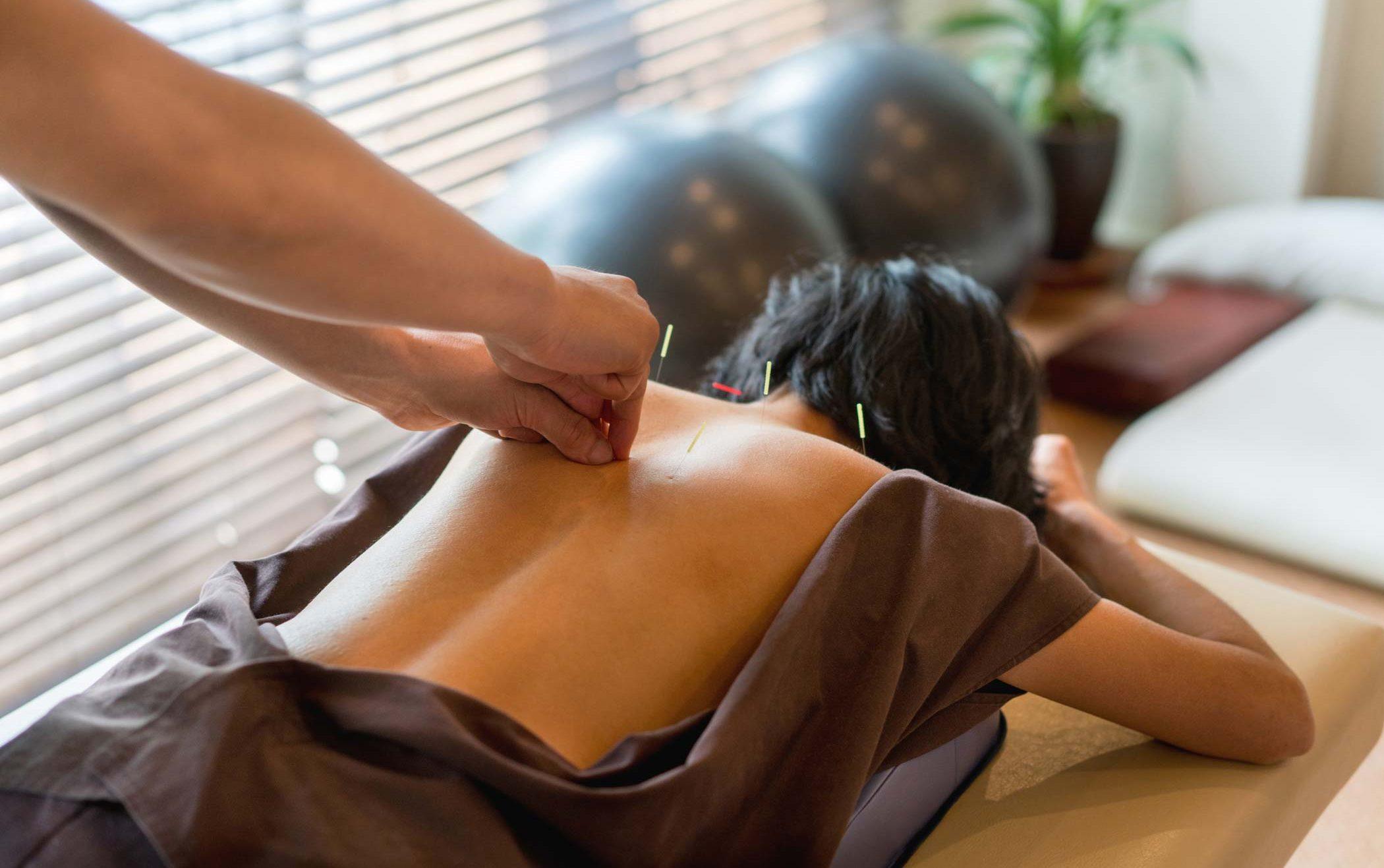 acupunture practice