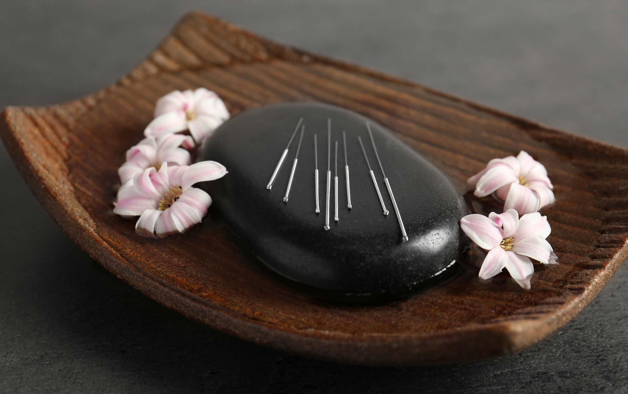 acupunture technique