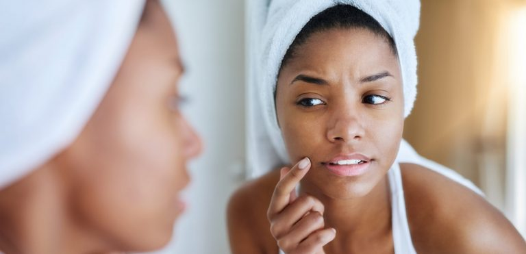 Problem Skin: Why You Have it and What to Do About it