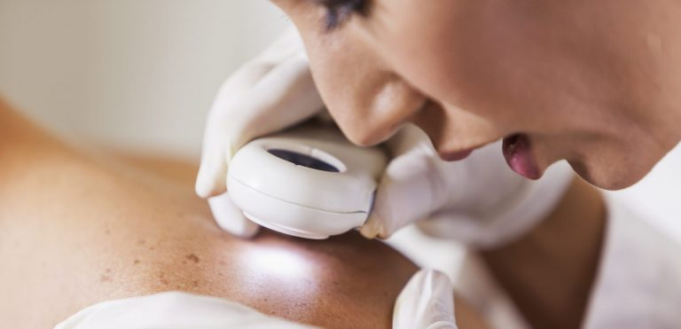 What to Watch Out For – Early Signs of Skin Cancer